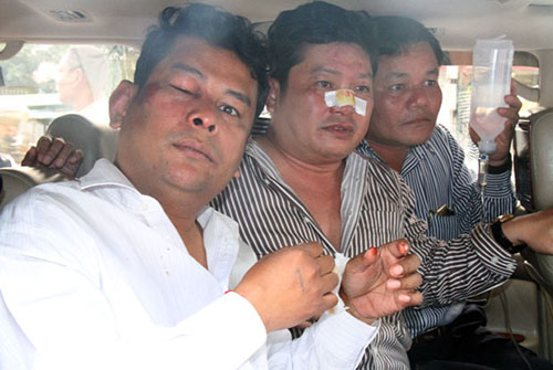 cnrp-mps620